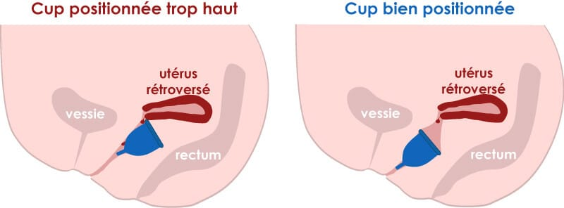 mauvaise position de la cup avec un utérus rétroversé