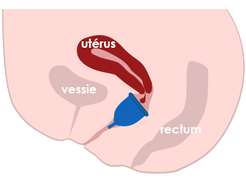 coupe menstruelle insérée